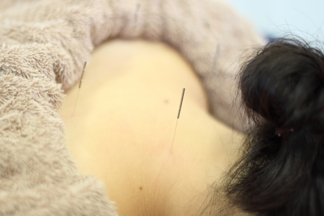 鍼灸や骨格矯正などを組み合わせた施術で症状を改善します